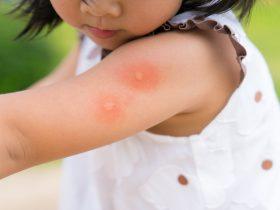 allergisch voor muggen